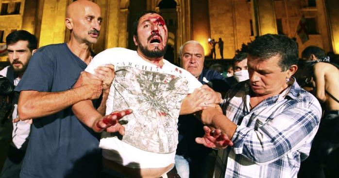 """""""Ваши пули убивают, вы убили человека!"""" Рассказ раненого резиновой пулей в Тбилиси"""