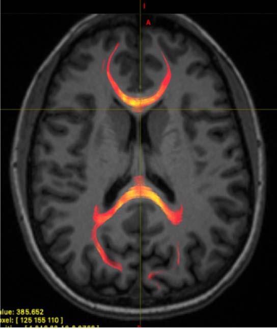 МРТ пациента с сотрясением мозга, которое демонстрирует состояние белого вещества мозолистого тела, фото: RSNA