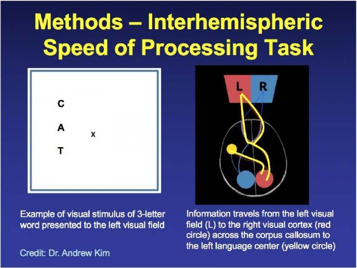 Схема теста, который оценивает, насколько хорошо два полушария в мозге контактируют между собой, фото: RSNA