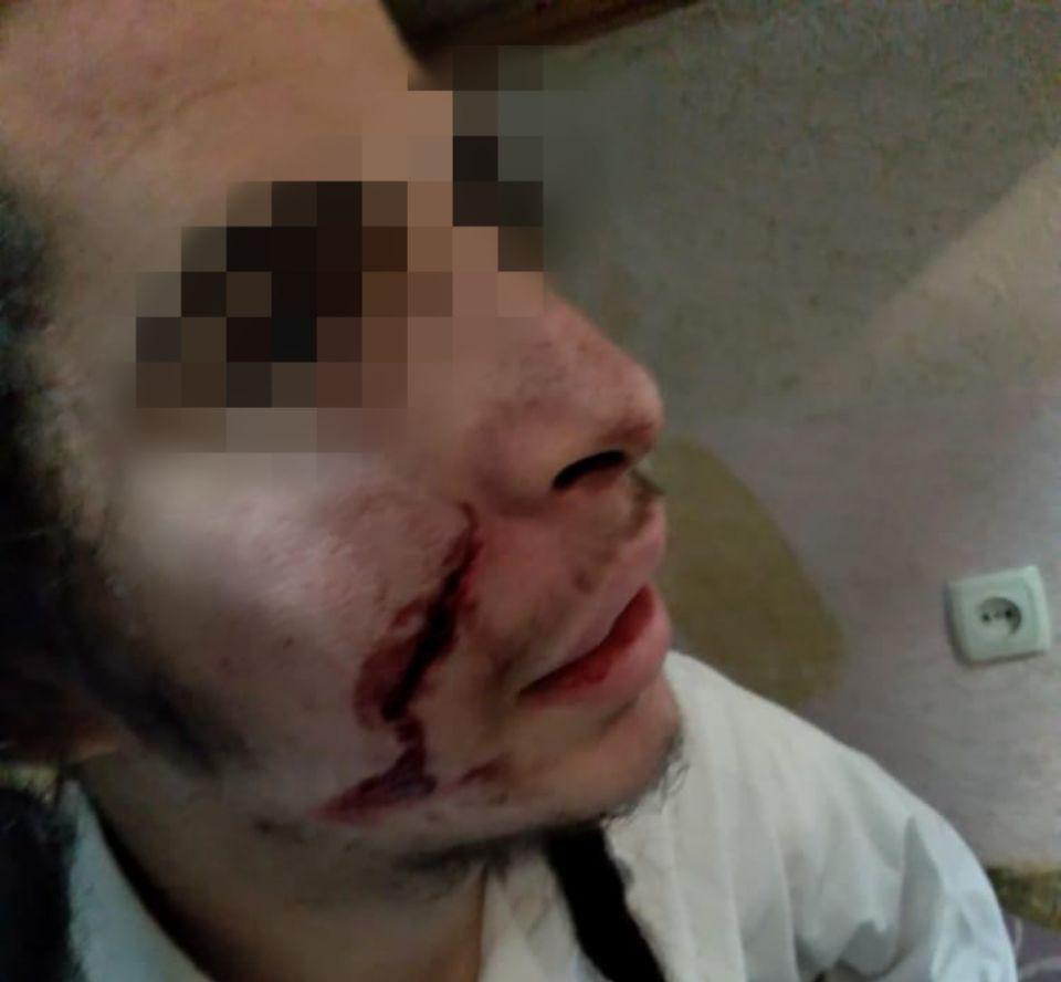 Напад на хасида. Фото: прес-служба громади