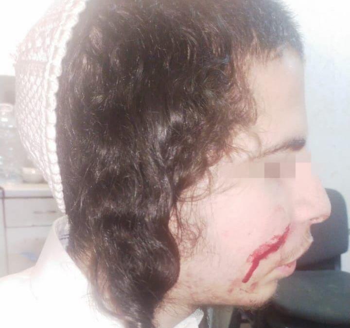 Рана після нападу. Фото: прес-служба громади