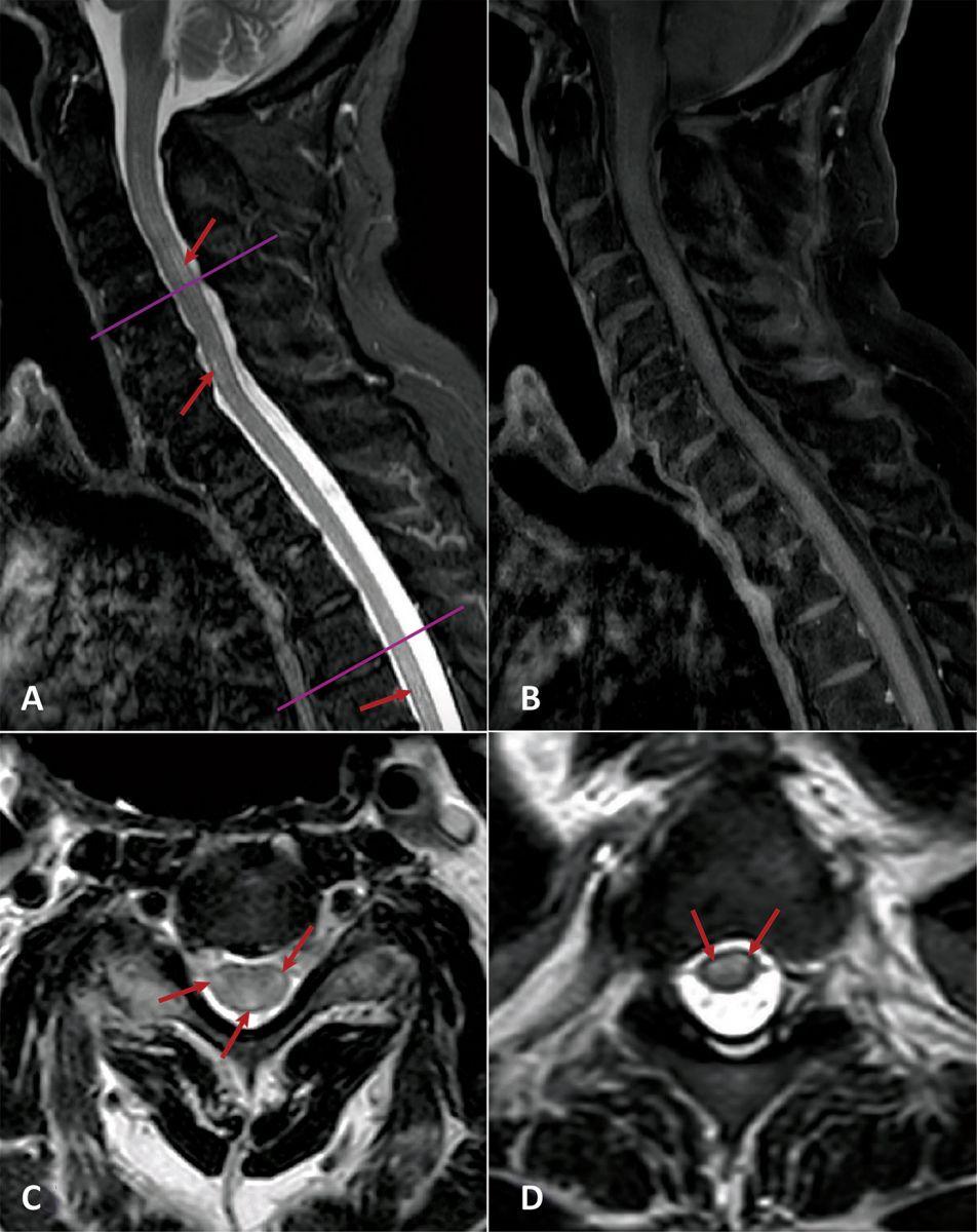 COVID-19 вызывает неожиданное неврологическое заболевание