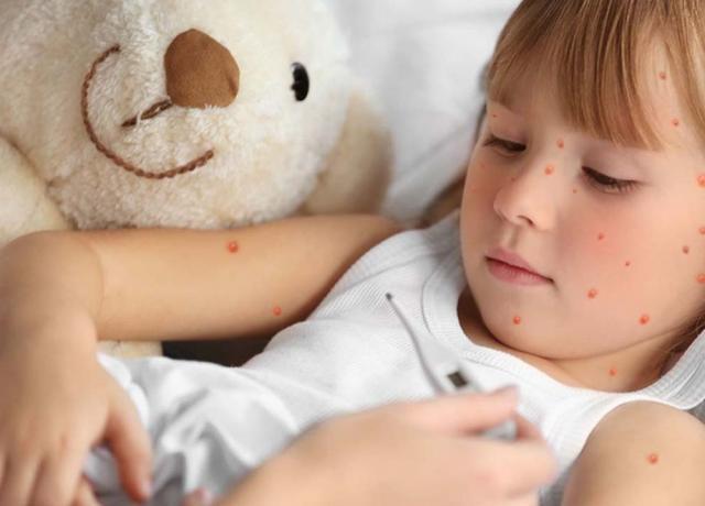 Спалах кору в Україні: хвороба дісталася Херсонської області